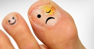 how to recognize nail fungus